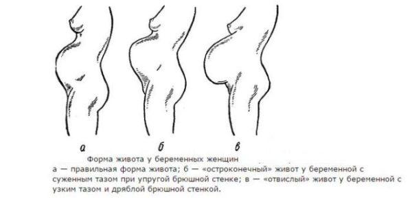 Форма живота беременной мальчиком 49