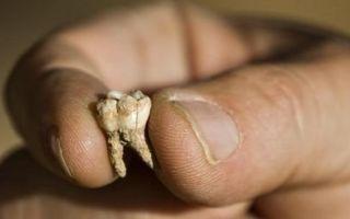 Во сне выпадают зубы без крови — к чему снится?