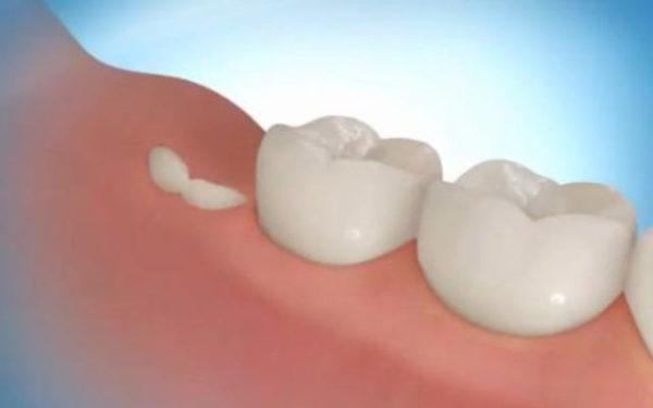 растет зуб
