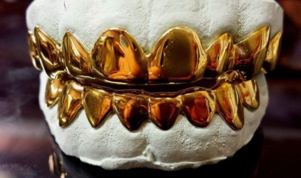 золотые зубы