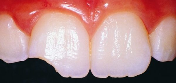 зуб откололся